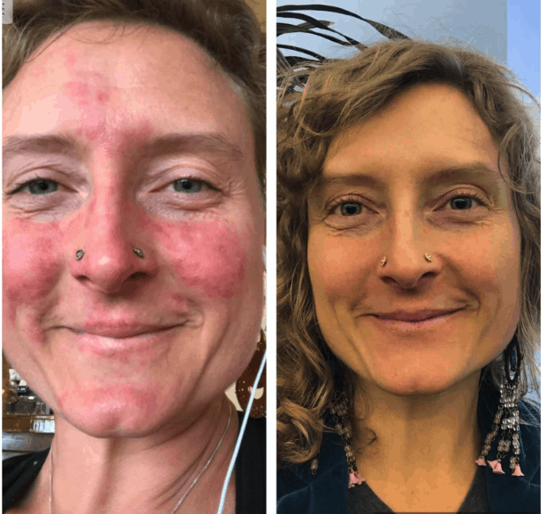 Before and After Pics of Victoria's Rosacea